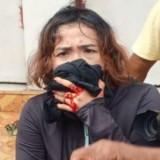 PWI Bojonegoro Angkat Bicara Adanya Wartawan Terluka Saat Liput Aksi Demo
