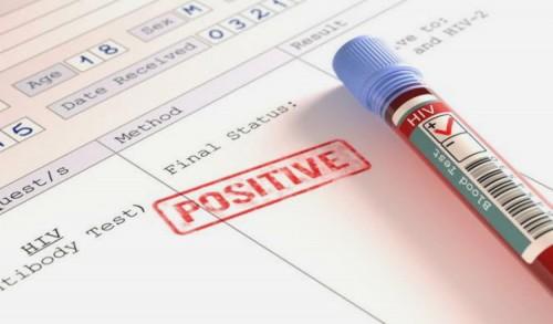 RSUD Trenggalek Tangani 50 Pasien HIV/Aids