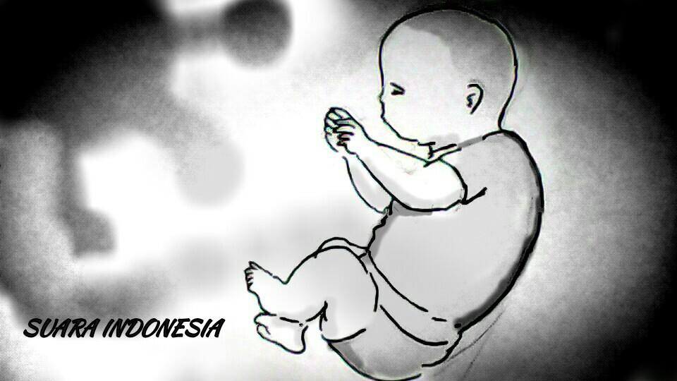 Bayi 8 Bulan Meninggal Usai Terpapar Covid-19